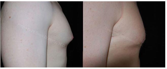 treat excess male breast tissue Boston